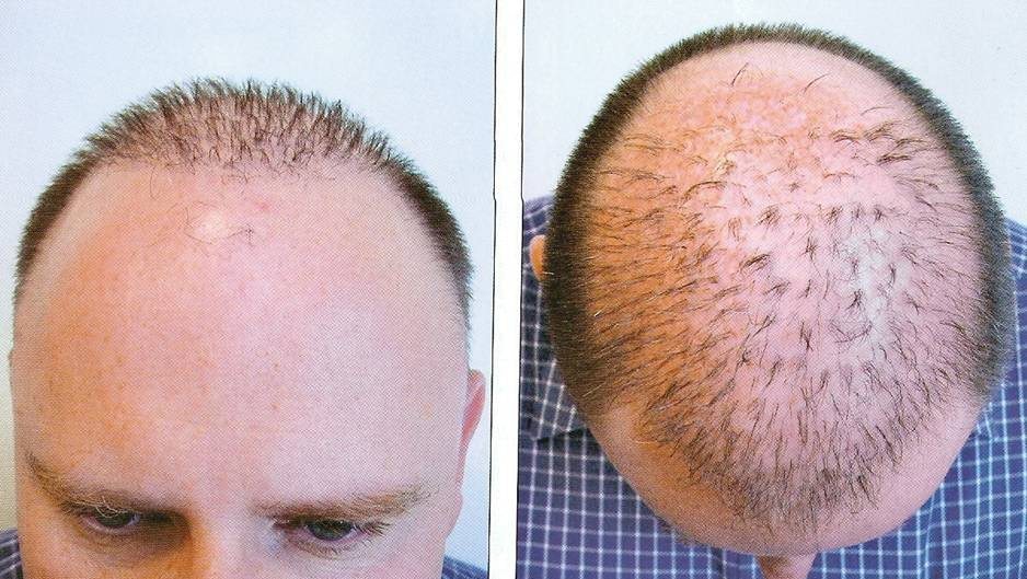 Dr.Madhu:::Hair Transplant Surgeon, India- Hyderabad::: for best ...