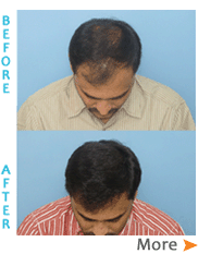 Hair transplant gallery, hair transplant results, hair loss control, hair transplant in india,Hyderabad, Mumbai, Pune